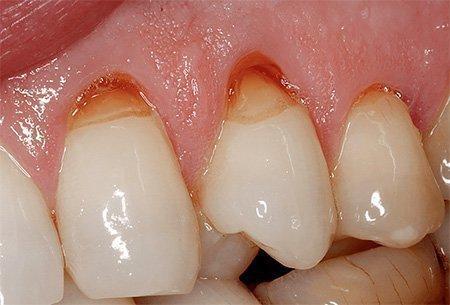 Оголения шейки при неправильном лечении пришеечного кариеса на зубе