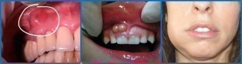 Флюс - гнойное воспаление на зубе