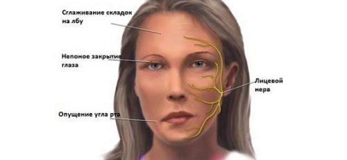 Осложнение анестезии - неврит лица
