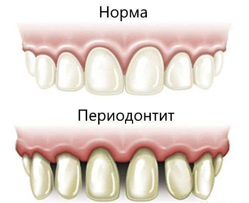 Проявления периодонтита