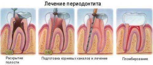 Схема лечения острого перидонтита
