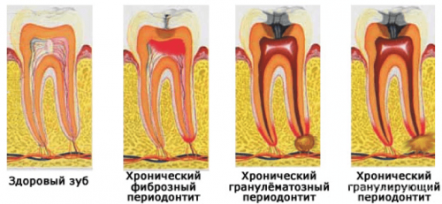 Подвиды периодонтитов: хронический и острый