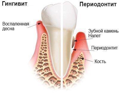Периодонтит и гингивит - дифференциация