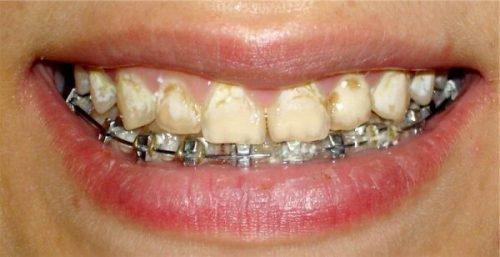Разрушение эмали зубов при прибрекетах