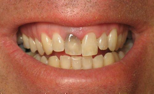 Погибший зуб серого цвета