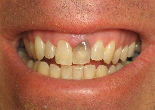 Потемнение зуба после лечения
