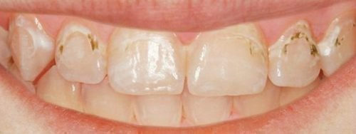 Поверхностный кариес на всех зубах