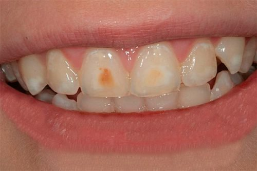 Поверхностный кариес на зубах