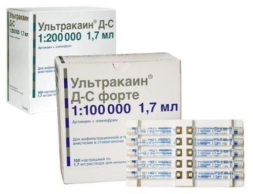 Препарат Ультракаин - анестетик