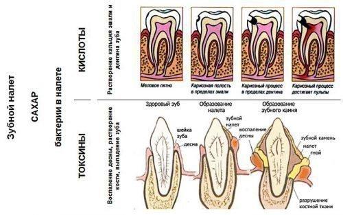 Причины и стадии заболеваний зубов