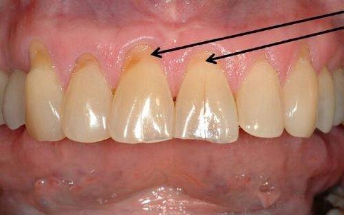 Пришеечная форма кариеса на зубах
