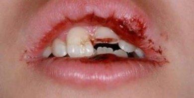 Первая помощь при сколе зуба