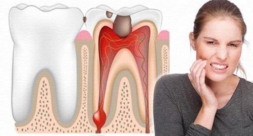 Пульпит зуба и боль