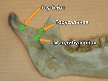 Точки введения иглы при разных типах анестезии