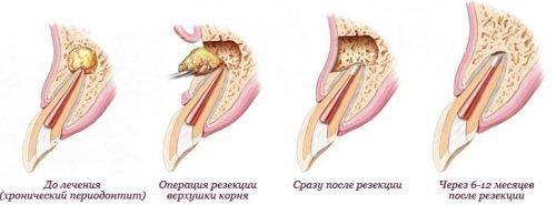 Резекция верхушки корня на зубе