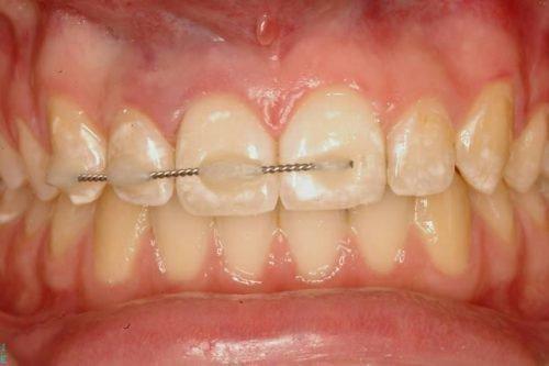 Шинирование вывиха зубов у ребенка