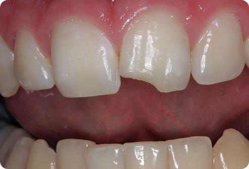 Скол зуба без нарушения пульпы