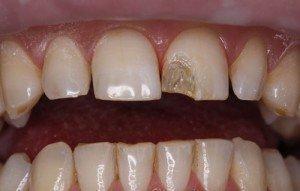 Скол на переднем зубе с обнажением пульпы