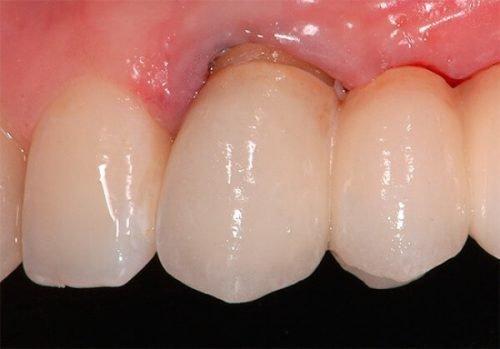 Кариес корня зуба - диагностика