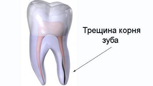 Трещина корня зуба вызывает боль