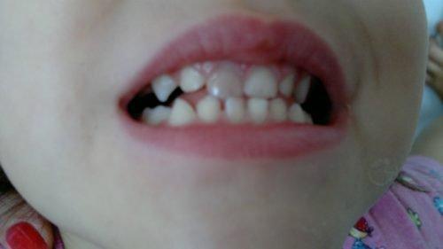 Ушиб молочного зуба с потемнением