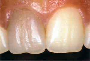 Ушиб - зуб поменял цвет