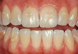 Кариес в стадии пятна на зубах