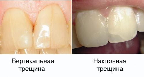 Варианты трещин на зубах