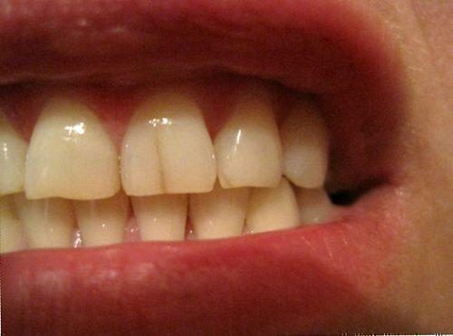 Вертикальные трещины зубов