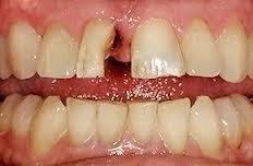 Вертикальный перелом переднего зуба и корня