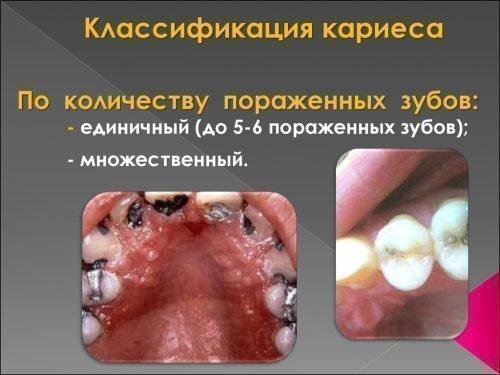 Виды по количеству поражений зубов