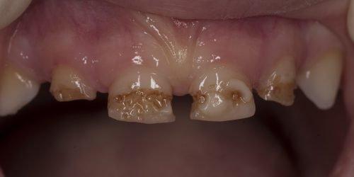 Врожденная гипоплазия на молочных зубах