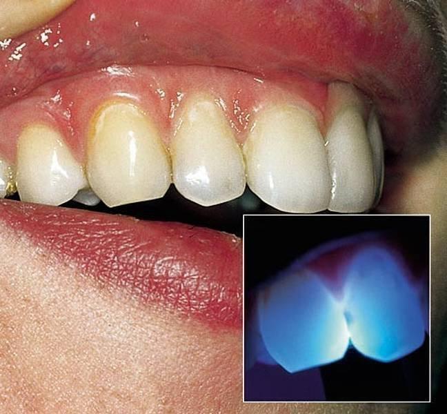 Люминисцентная диагностика кариеса