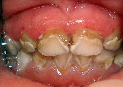 Генерализированная форма на зубах