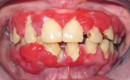 Запущенный периодонтит инфекционного происхождения