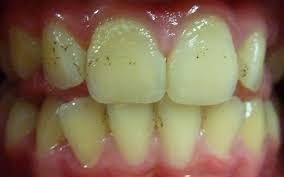 Зеленый налет на зубах