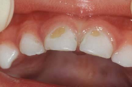 Желтые пятна на молочных зубах
