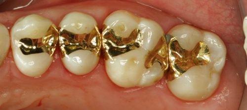 Золотые вкладки при лечении кариеса