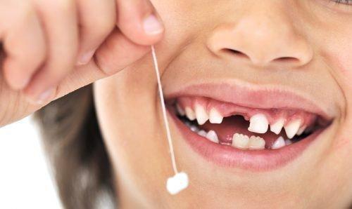 Удаленный зуб на ниточке