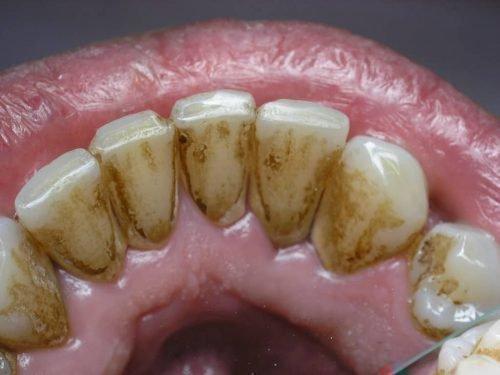 Зубной камень - причина кариеса