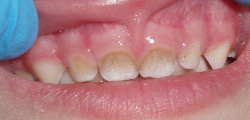 Зубной налет на зубах ребенка