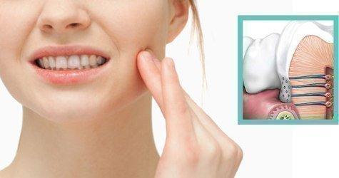 Чувствительность зуба после лечения кариеса
