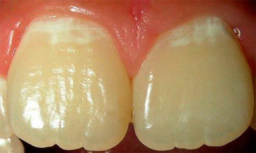 Начальная стадия деминерализации эмали зубов