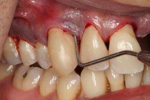 Процесс разрушения зубной ткани проявляется потемнением десен