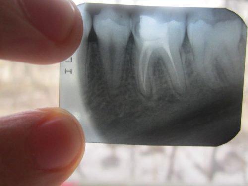 Диагностика чувствительности рентгеновским снимком