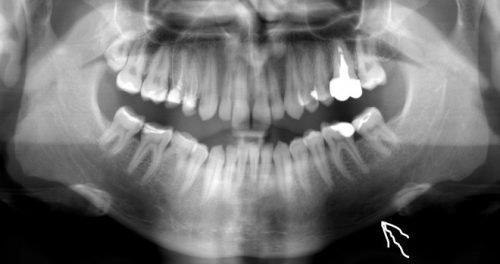 Диагностика пульпита с помощью рентген снимка