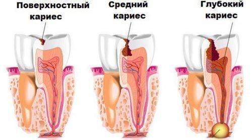 Виды кариеса: поверхностный, средний. глубокий