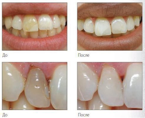 До и после восстановления эмали