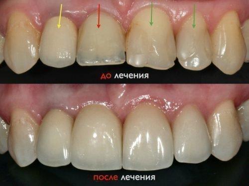 До и после лечения эмали