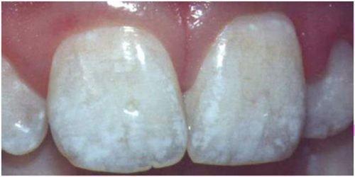 Флюороз зубов и фтор
